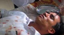 Phóng viên Báo Dân Trí bị chém trọng thương