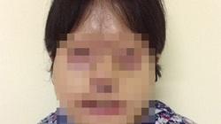 Lần đầu tiên tái tạo cả gương mặt bị tạt axit
