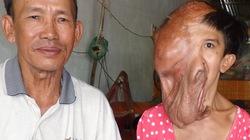 Cô gái hơn 2 thập kỷ sống với mũi, tai, miệng... chảy dài xuống ngực
