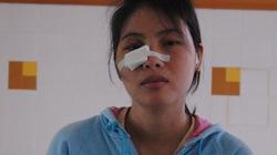 Một sản phụ bị côn đồ đánh vỡ hốc mắt