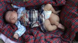 Trung Quốc: Bé gái sơ sinh 3 chân suýt bị mẹ bỏ rơi