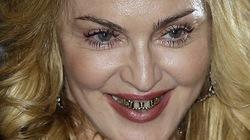 Ngã ngửa với răng bọc vàng của Madonna