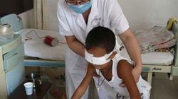 Bé trai 6 tuổi bị khoét mắt sẽ được lắp mắt điện tử