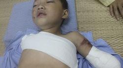 Phú Thọ: Bé trai 5 tuổi bị gấu nuôi cắn nát 2 tay