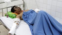 Nam sinh bị tạt axít trước ngày thi đại học