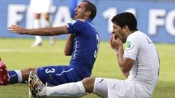 Liverpool mất 25 triệu bảng vì Suarez cắn Chiellini