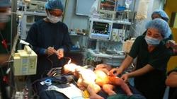 Phẫu thuật tách cặp song sinh dính bụng