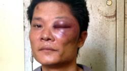 Công an Quảng Ninh lên tiếng vụ 2 khẩu súng bị cướp trong trụ sở