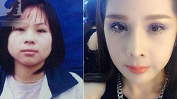 """Hành trình """"'dao kéo"""" rùng rợn 14 lần trong 10 năm của cô gái Hà thành"""