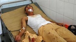 CSGT bị côn đồ cầm dao phóng lợn chém trọng thương
