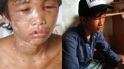 Hào Anh: Từ cậu bé bị gia chủ hành hạ dã man đến ngược đãi bố mẹ