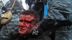 Giao tranh ở Ukraine đã khiến bao nhiêu người thiệt mạng?