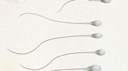 Xuất hiện thuốc tiêm ngừa thai dành cho đàn ông