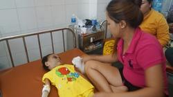 Bình Dương: Bé 3 tuổi bị trói đánh đến biến dạng, kiến bu đầy người