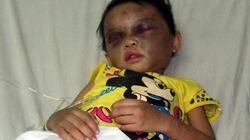 Đủ căn cứ khởi tố vụ án cặp vợ chồng đánh con 3 tuổi chấn thương sọ não