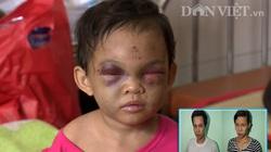 Bé 3 tuổi bị bố mẹ đánh chấn thương sọ não: Mẹ thương con mẹ đừng đánh con!