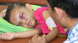 Xót lòng nhìn bé gái 3 tuổi bị mẹ ruột, cha dượng đánh đến xuất huyết não