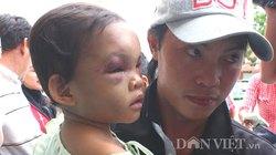 Cha ruột bé 3 tuổi bị bạo hành dã man bất ngờ xuất hiện nhận con