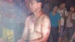 """Cảnh sát bị lột quần áo giữa chốn đông vì """"mây mưa"""" với vợ người"""