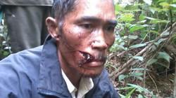 Đi tuần tra, 2 bảo vệ rừng bị hành hung dã man