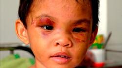 Cháu bé 3 tuổi bị bạo hành được giải cứu do dân mật phục