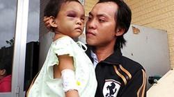 Bình Dương: Xét nghiệm ADN xác định cha ruột của bé 3 tuổi bị bạo hành