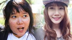 Màn thay đổi đáng kinh ngạc của thiếu nữ Thái mặt mụn