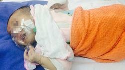 Bệnh ho gà tái xuất, trẻ nhập viện tăng gấp đôi