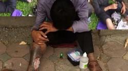 Kẻ giả vờ hoại tử chân xin tiền ở Hà Nội bị đánh bầm dập