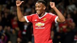 Top 10 cầu thủ U21 đắt nhất thế giới: Martial đầu bảng
