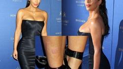 Kim Kardashian đau đớn, da xấu vì mắc bệnh vảy nến