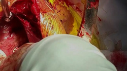Mở ngực cứu sống xe ôm bị dao đâm thấu tim