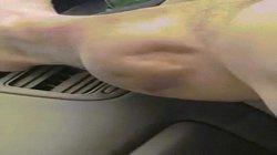 Sinh vật ngoài hành tinh sống trong bắp chân người?