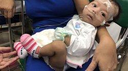 """Bé 2 tháng tuổi mắc bệnh """"lạ"""" chỉ chưa đầy 40 người trên thế giới bị"""
