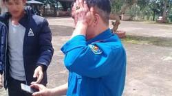 Lâm Đồng: 2 người nhận khoán rừng bị đánh trọng thương