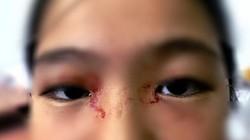 Bé gái 11 tuổi toát mồ hôi như máu ở Việt Nam