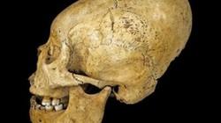 Vì sao người xưa đua nhau làm biến dạng hộp sọ?