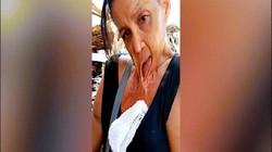 Người phụ nữ miệng dính trên ngực suốt 15 năm