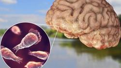 Nhiễm vi khuẩn ăn não khi đi công viên nước, người đàn ông tử vong