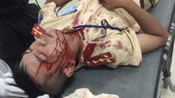 Người vi phạm dùng đá đánh cảnh sát giao thông nhập viện