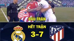 Real Madrid thua thảm Atletico, anti fan được dịp hả hê chế ảnh