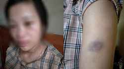 Diễn biến mới vụ mua giày 135 ngàn, vợ mang thai 8 tháng bị chồng đánh