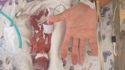 Kỳ diệu: Bé trai sinh non 23 tuần, nặng 370 gram, bé bằng bàn tay bố