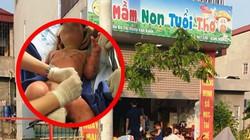 Thông tin mới nhất vụ 3 trẻ mầm non bị bỏng do cô giáo đốt cồn