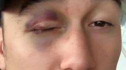 Dính đòn đau điếng, Văn Lâm tím bầm mắt trước khi hội quân