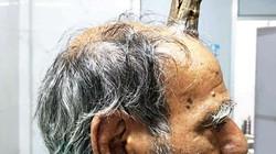 Chuyện có thật: Người đàn ông bị mọc sừng trên đỉnh đầu
