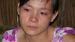 Xót lòng bé 5 tuổi bị mẹ kế đánh nhập viện