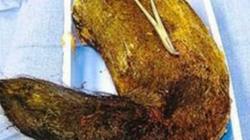 Kinh hoàng gần 2kg tóc cuộn tròn trong dạ dày thiếu nữ