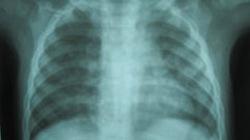 Bé trai bị xẹp phổi do hóc xương lợn
