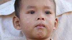 Rạch mặt chằng chịt bé trai 2 tuổi chỉ vì ghét
